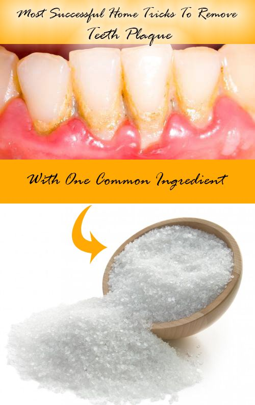 4 Most Successful Home Tricks To Remove Teeth Plaque Love It