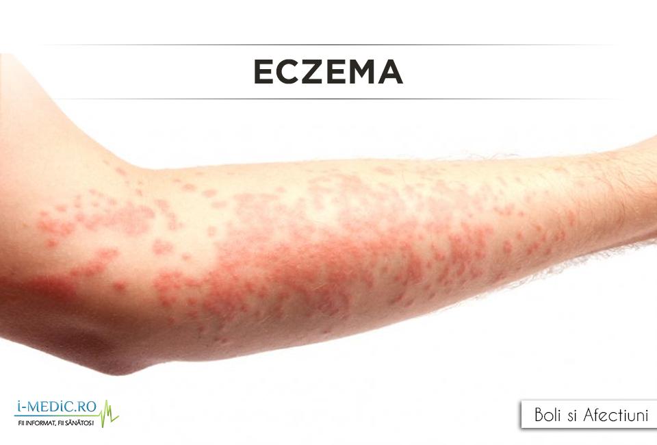 de la boala varicoză
