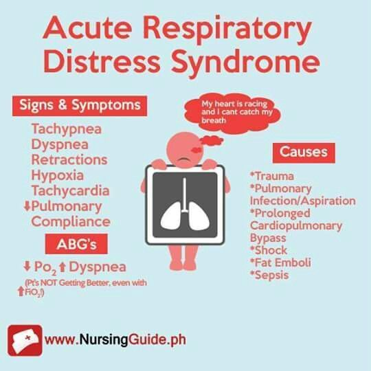 Adult Respiratory Distress Syndrome - What Is It, Symptoms