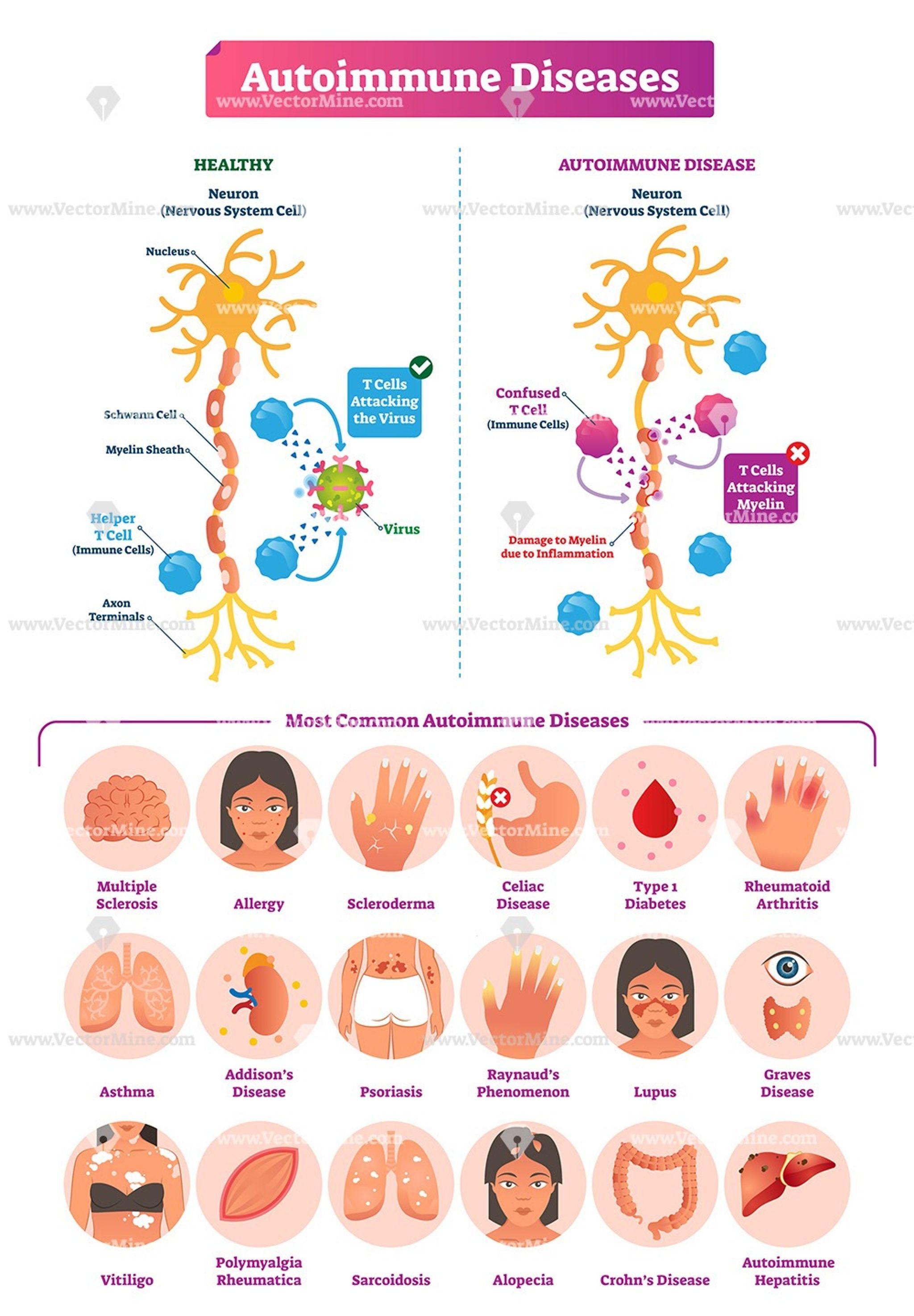 Autoimmune Diseases Vector Illustration Infographic Autoimmune Disease Vitiligo Cure Vitiligo Treatment