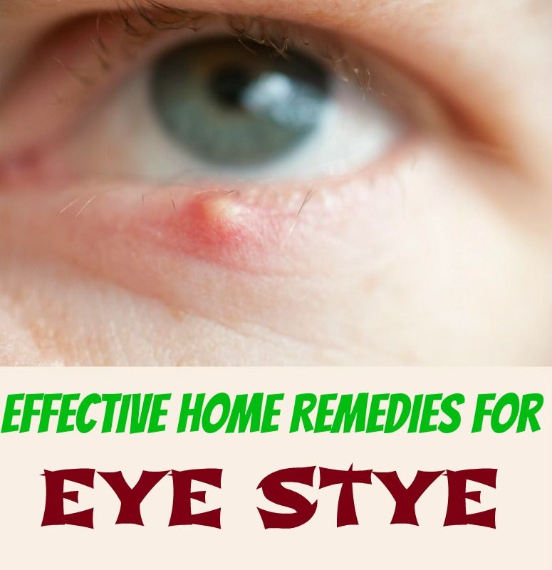 26 Effective Home Remedies To Get Rid Of Eye Stye Eye Stye