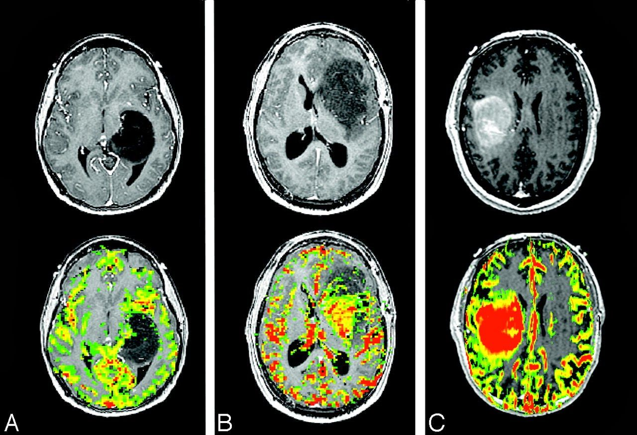 Anatomy Picture Reference and Health News: Astrocytoma | anaplastic ...
