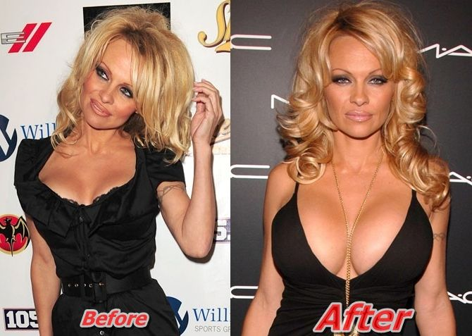 Pamela Anderson Breast Implants surgery before and after boob Job Pictures and reasons....