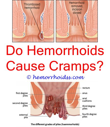 Does Everyone Get Hemorrhoids After Giving Birth Can -5467