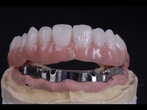All On 4 Implant Bar Supported Denture Denture Dental Dental Implants