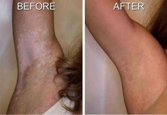 Vitiligo Treatment Video-Home Remedies For Vitiligo On Face
