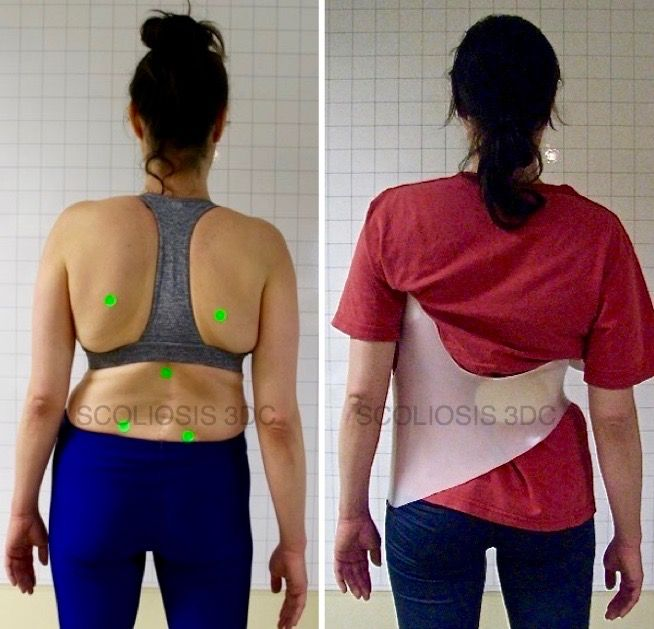 Scoliosis in adult