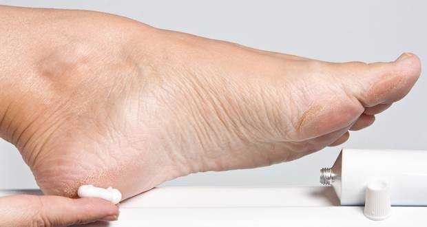 Como eliminar los callos en los pies de manera simple pero muy efectiva en casa!
