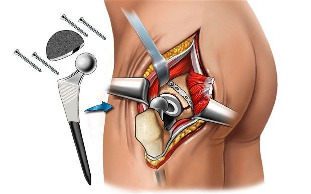 """HSS: THR """"EXCELLENT FOR"""" PATIENTS UNDER 35 