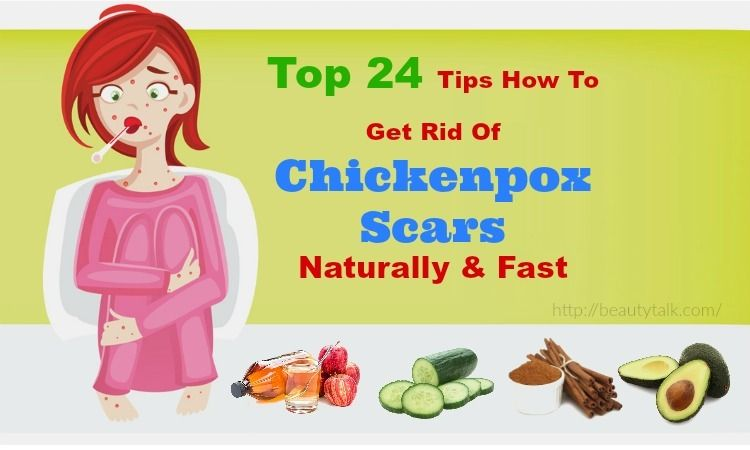 Top 24 Solutions To Get Rid Of Chickenpox Scars Naturally Fast
