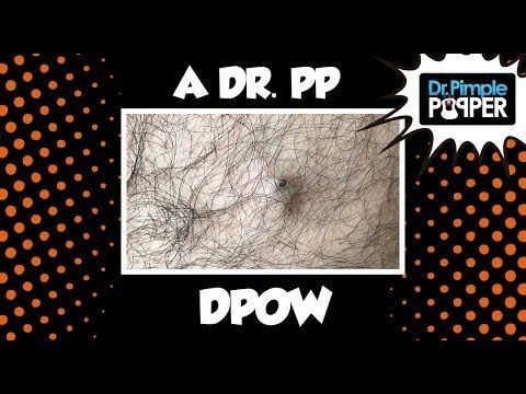 Best Dr Pimple Popper Videos Of 2018 Acnenaturaltreatment