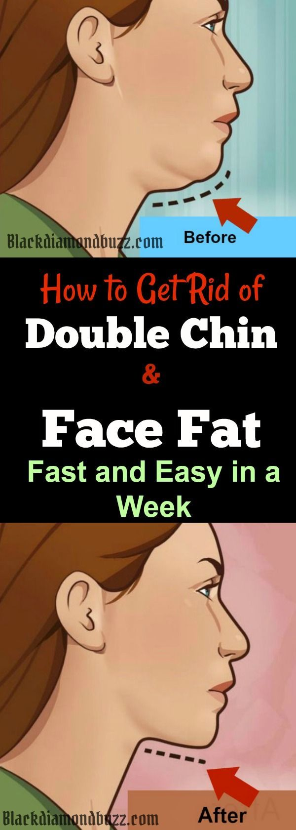 how to lose under chin weight