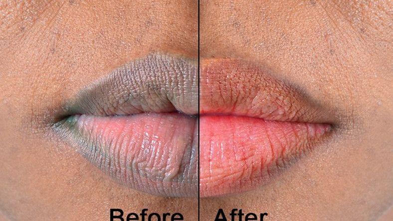 b9bd67070d7206d4e0103ff11e29d6cf - How To Get Rid Of Dark Lips Caused By Smoking