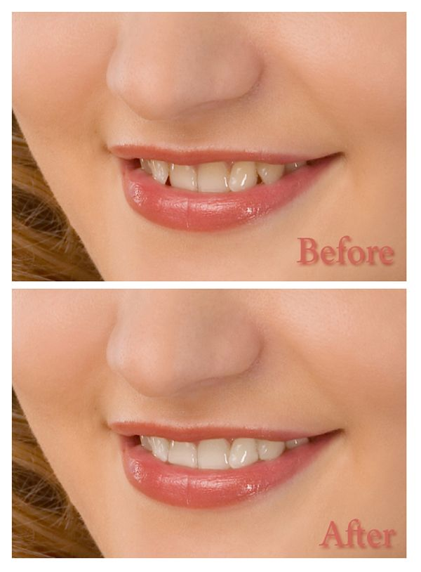 How to whiten teeth in adobe photoshop app