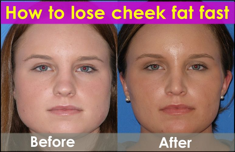 fastest way to lose face fat reddit