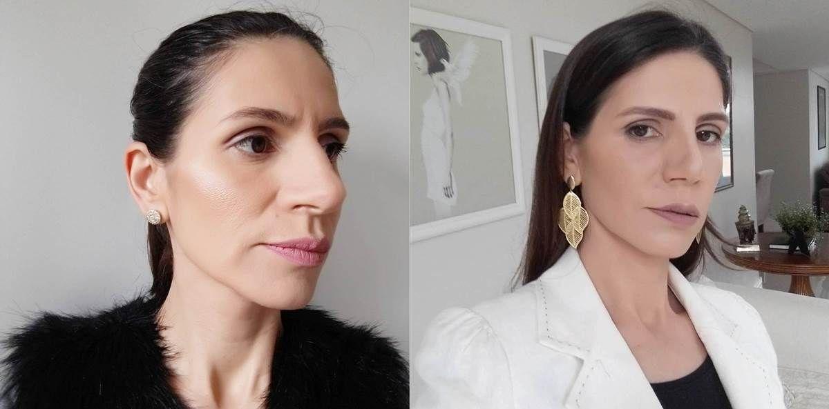 Rinoplastia Antes E Depois Da Minha Cirurgia Tao Desejada
