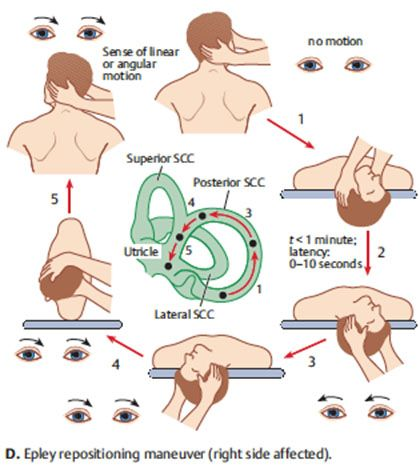 images of exercises | bppv -- benign paroxysmal positional vertigo, Skeleton