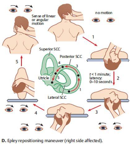 Contact Dr Adunka Unc Chapel Hill Department Of Otolaryngology Head Vertigo Treatment Vertigo Epley Maneuver