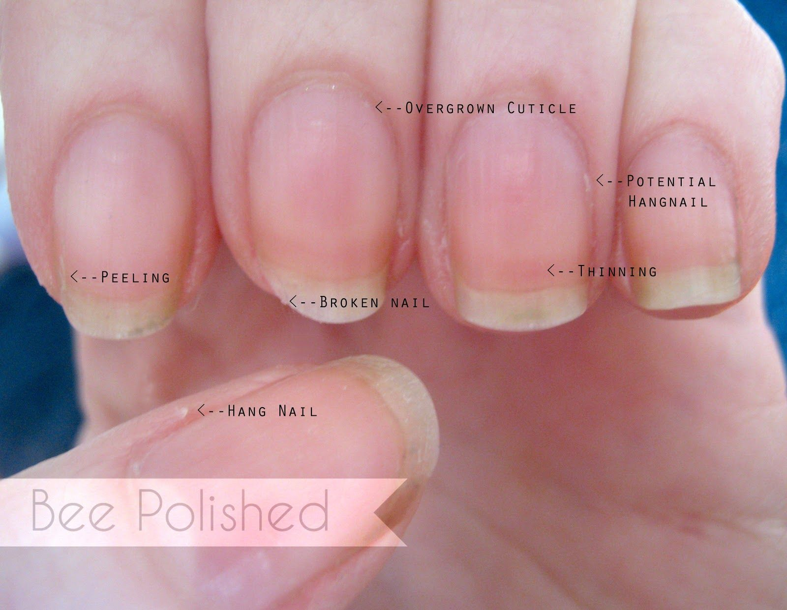 Rehab Your Nails Spa Manicure  from Bee Polished  Nailed It