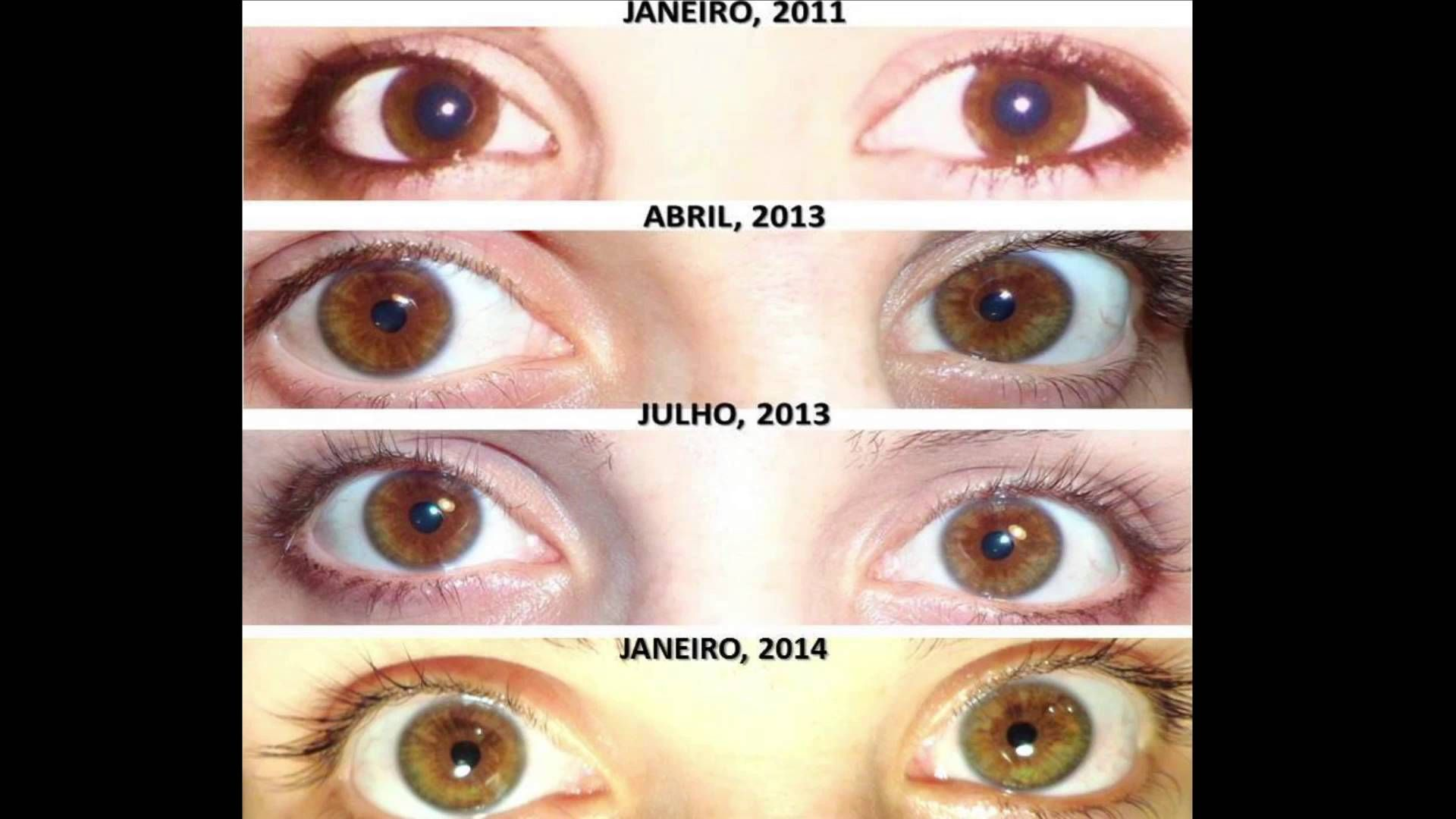 raw vegan diet and eye colour images
