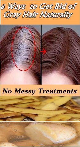 Get Rid Of White Hair In A Week Natural Gray Hair Natural Hair Styles Grey Hair Remedies