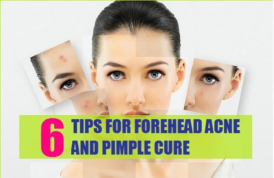 6 Home Remedies for Forehead Acne and Pimples | Body care