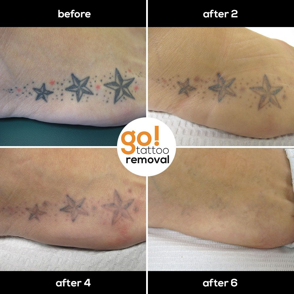 6 treatments over a 3 year period of time have provided