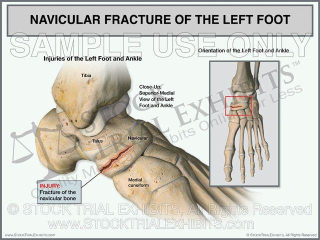Navicular Fracture of the Left Foot Stock Trial Exhibit, stock ...