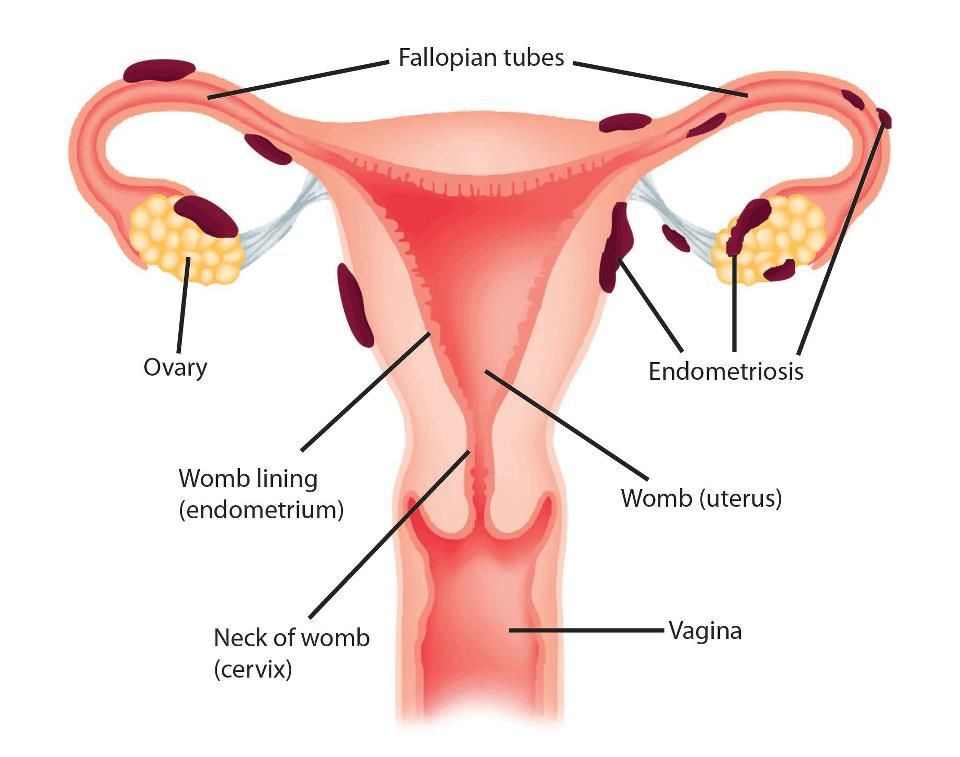 Image result for endometriosis