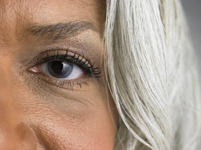 Dark Eye Circles: What Causes Them?