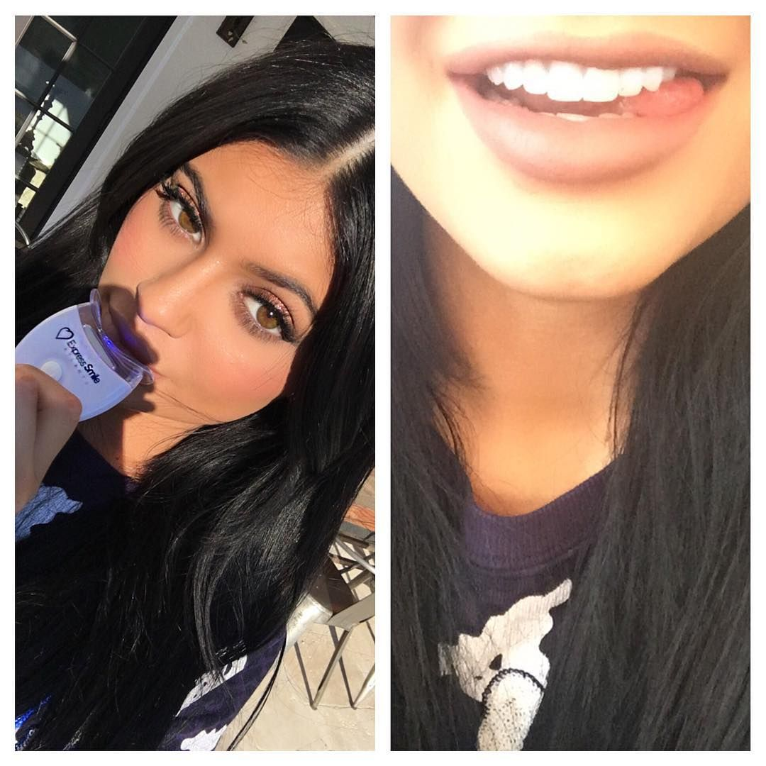 Kylie Jenner Teeth Before Kylie Jenner Instagram