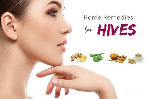 Top 16 Natural Home Remedies For Hives On Face And Body ...