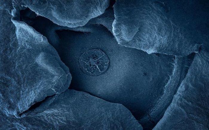Arándano al microscopio