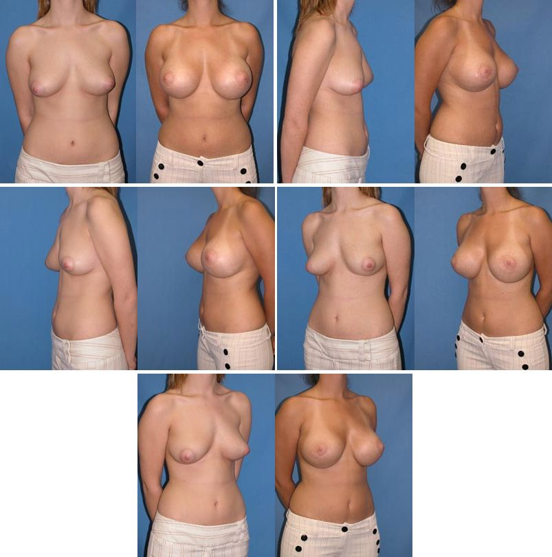 Breast Lift With Augmentation Photo Gallery We Believe -8246