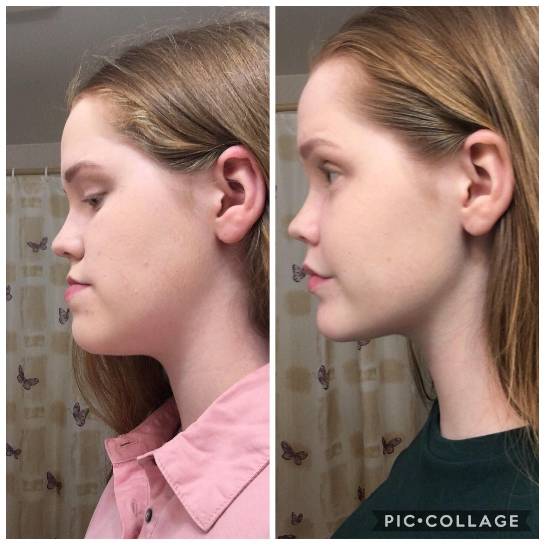 Pin by magget on Jaw surgery in 2020 Jaw surgery, Tmj