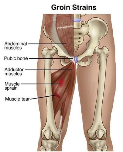 Pubalgia | MASSAGE DEEP | Pinterest | Ejercicios musculares ...