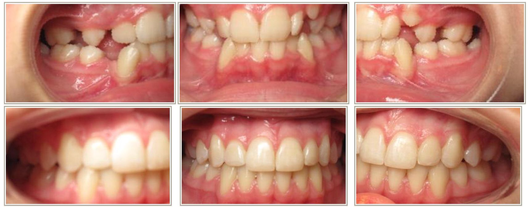 Severe crowding extraction case notice after alignment with notice after alignment with braces you cannot tell our beautiful patient had extractions solutioingenieria Images