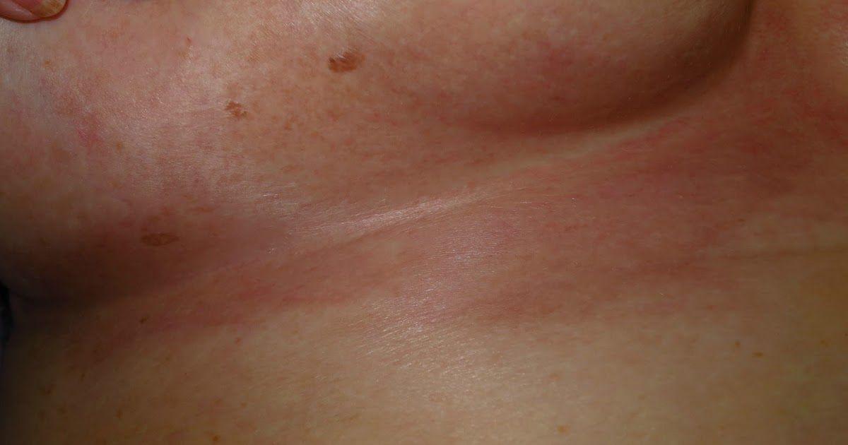 Dermapixel: ¿Cómo tratar un intértrigo candidiásico?