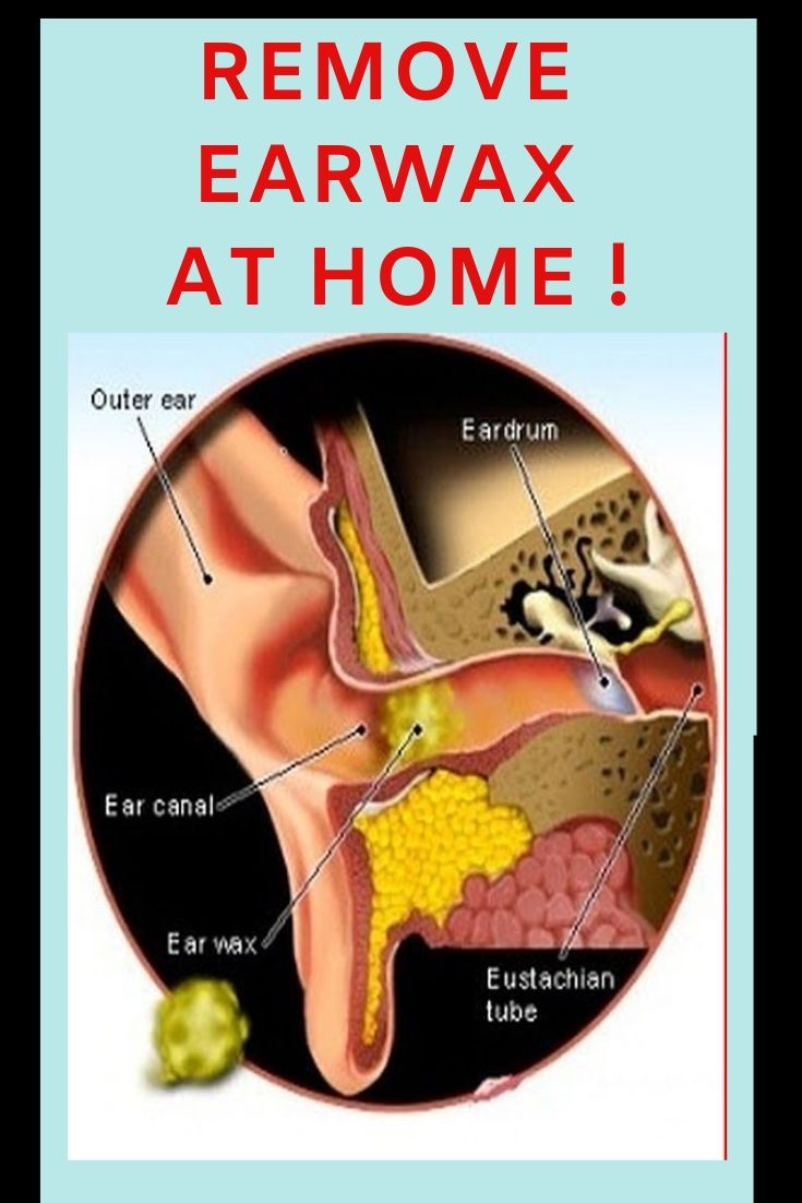 Causes and tips for removing earwax at home instantly