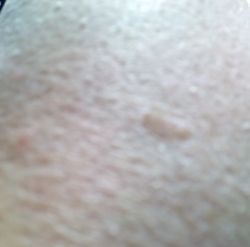 Raised Age Spots On Skin Find out about the many products