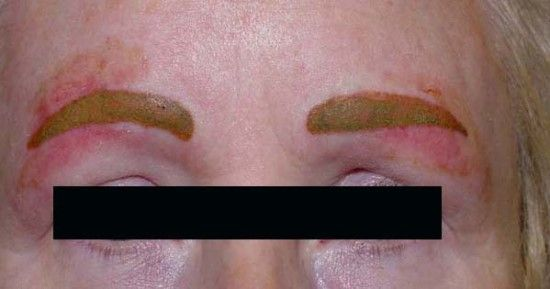 Bad Permanent Makeup Bad Permanent Makeup Example Permanent