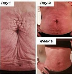 Can you lose body fat not eating image 3