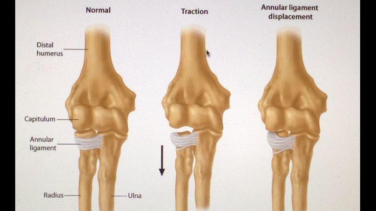 Image result for annular ligament of radius | usmle | Pinterest