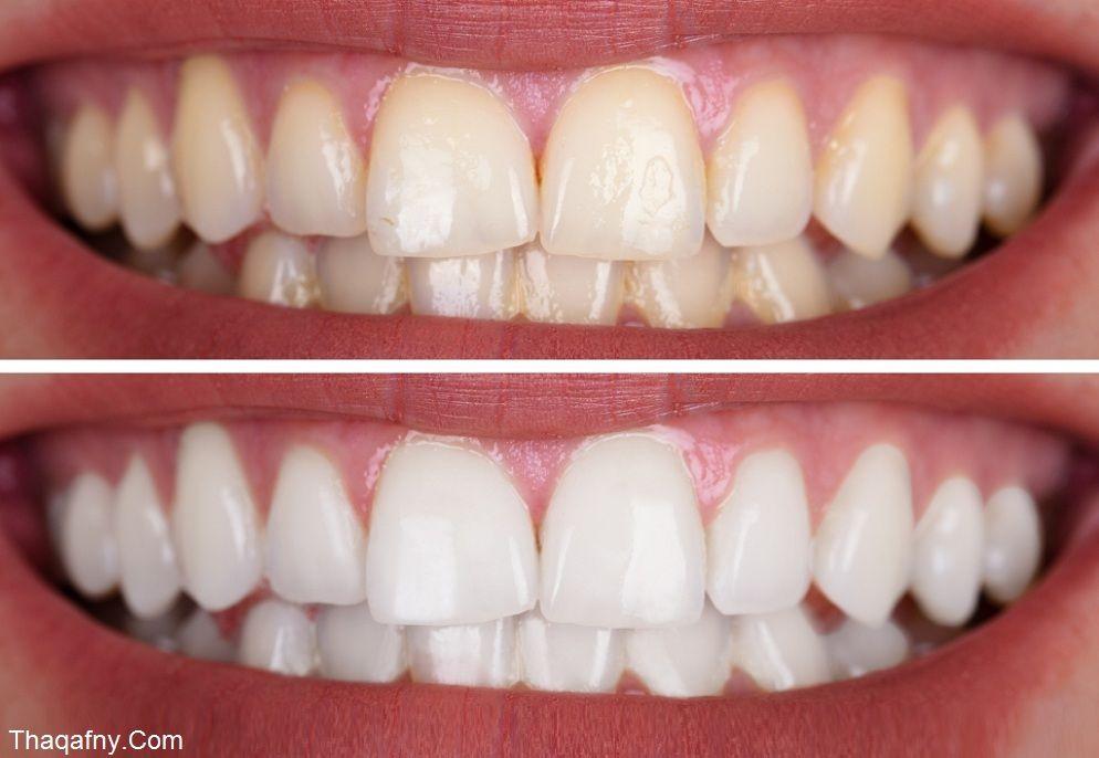 Pin On صحة الفم والأسنان