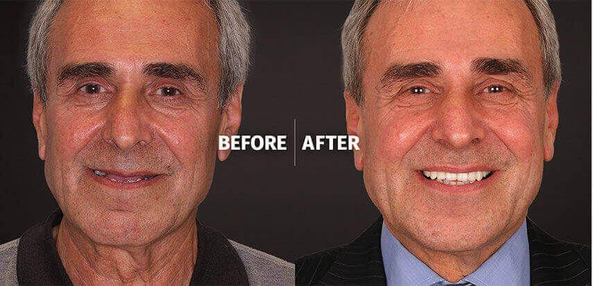 Dental implants brighton implant clinic brighton