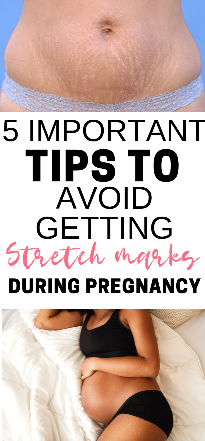 5 Tips to Prevent Stretchmarks During Pregnancy
