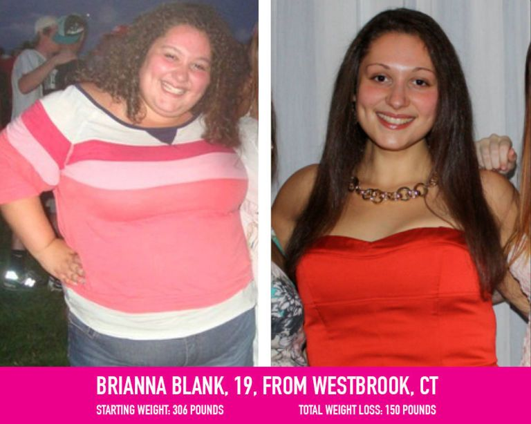 Want to lose weight after anorexia photo 2