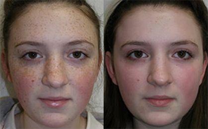 skin care after dermaroller