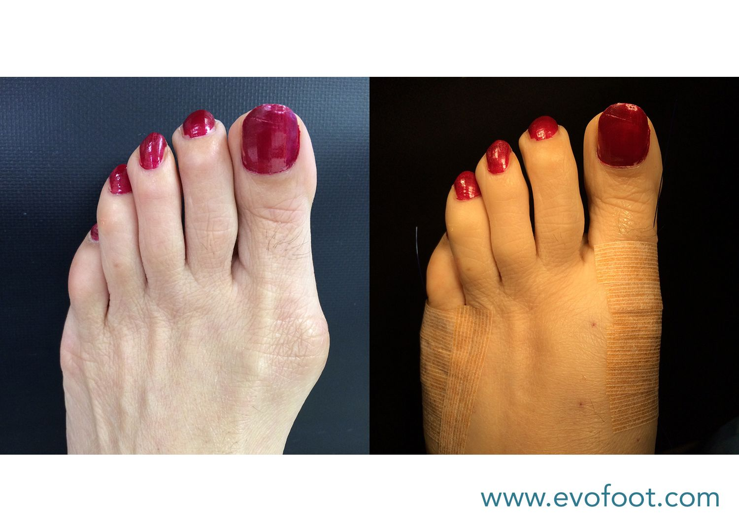 Bunionectomy and Tailor's Bunionectomy before and after