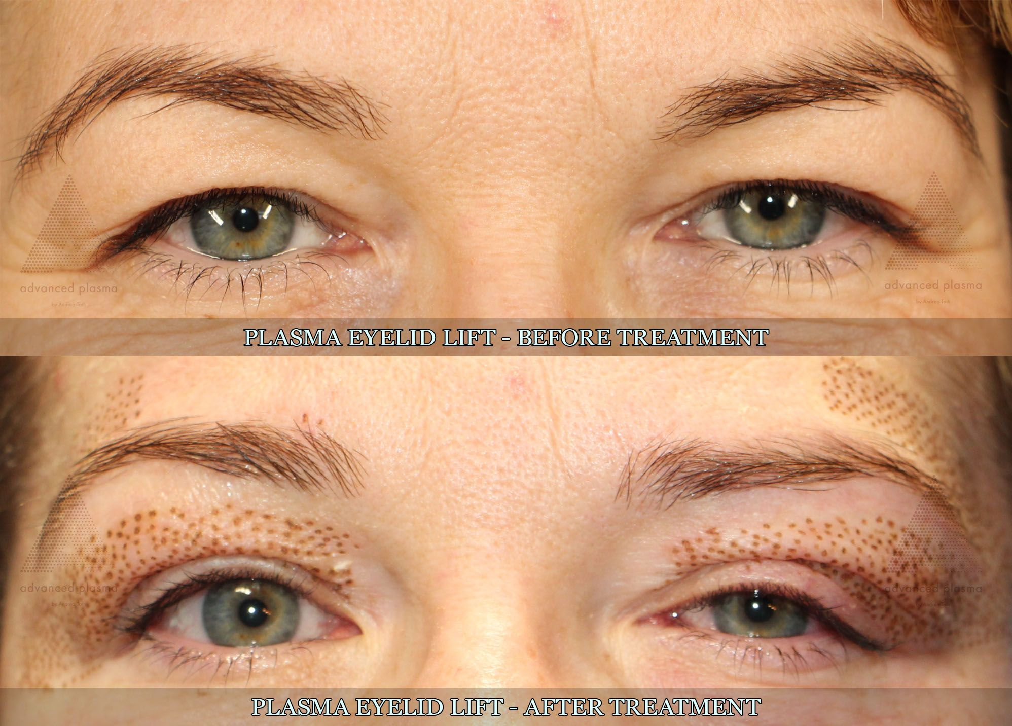 Plasma eyelid lift treatment Before, after pictures More